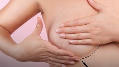 Foto de Femama alerta sobre mamografias após vacina contra covid-19